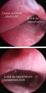 Évidement des cavités nasales sous guidage endoscopique traitement du jetage chronique