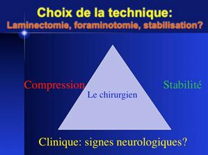 Le syndrome de la queue de cheval: une entité sous-diagnostiquée!
