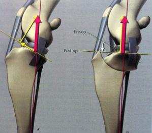 Traitement de la déchirure du  ligament croisé par l'ostéotomie tibiale