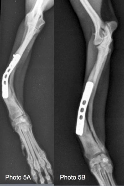 radiographies préopératoires d'une cicatrisation vicieuse après ostéosynthèse  d'une fracture du radius cubitus  9 mois  après l'intervention.