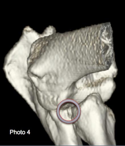 Traitement d'une dysplasie du coude chez un berger Allemand de 11 mois par arthroscopie et cellules souches