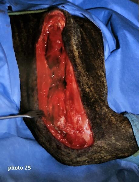 vue peropératoire après libération des muscles et flexion du genou