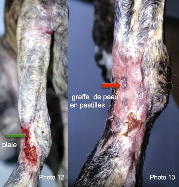 vues postopératoires 4 semaines (photo 12) et 6 semaines (photo 13) après la reconstruction. Des greffes en pastilles ont été utilisées sur la plaie afin d'accélérer la cicatrisation