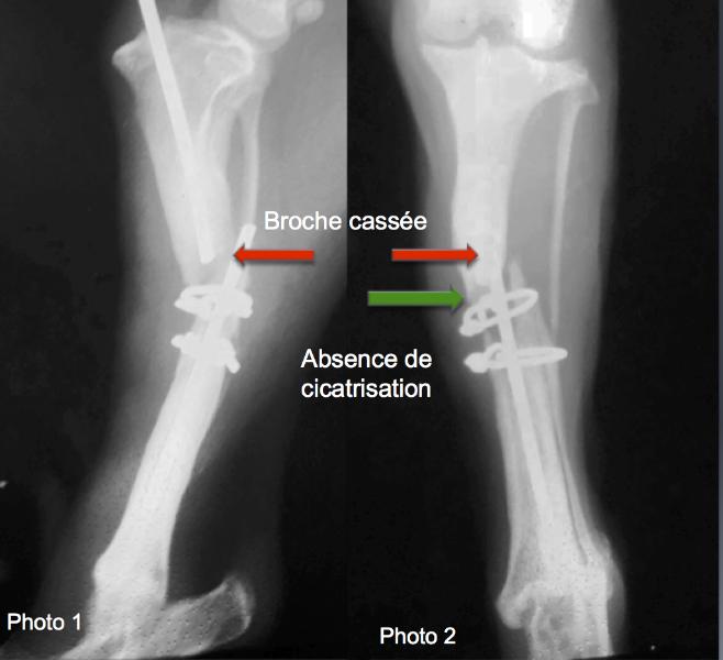 radiographies préopératoires d'une nonunion du tibia après fracture de broche 14 semaines après l'intervention