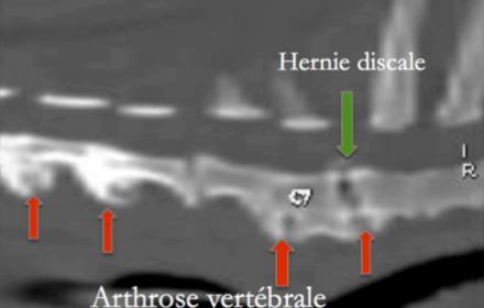 GUÉRISON D'UNE HERNIE CERVICALE INVALIDANTE à la clinique ABVET à Neuilly-Seine