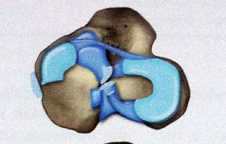 Les ménisques: qu'est-ce que c'est ? Incidence de cette pathologie chez le chiens