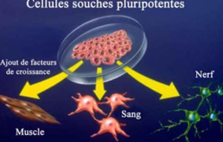 Le traitement de l'arthrose peut être amélioré par l'emploi de cellules souches