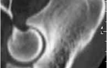 Processus coronoïde revisité: syndrome du compartiment médial du coude  du chien
